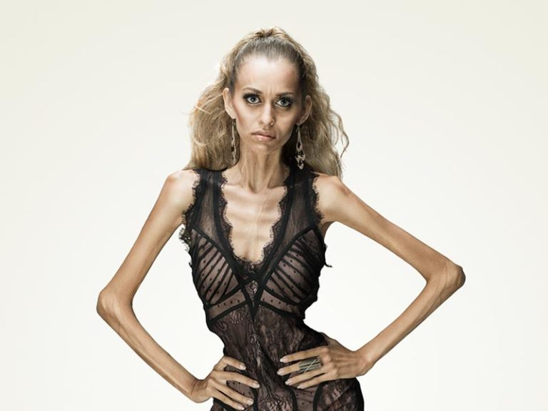 Alopectyl helps treat symptoms of anorexia. It is taken at the beginning